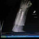 Broken3 150x150 Have Broken Arm, Will Unicycle...